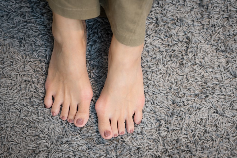 Bunion Condition - Foot and Toe Deformities in Singapore