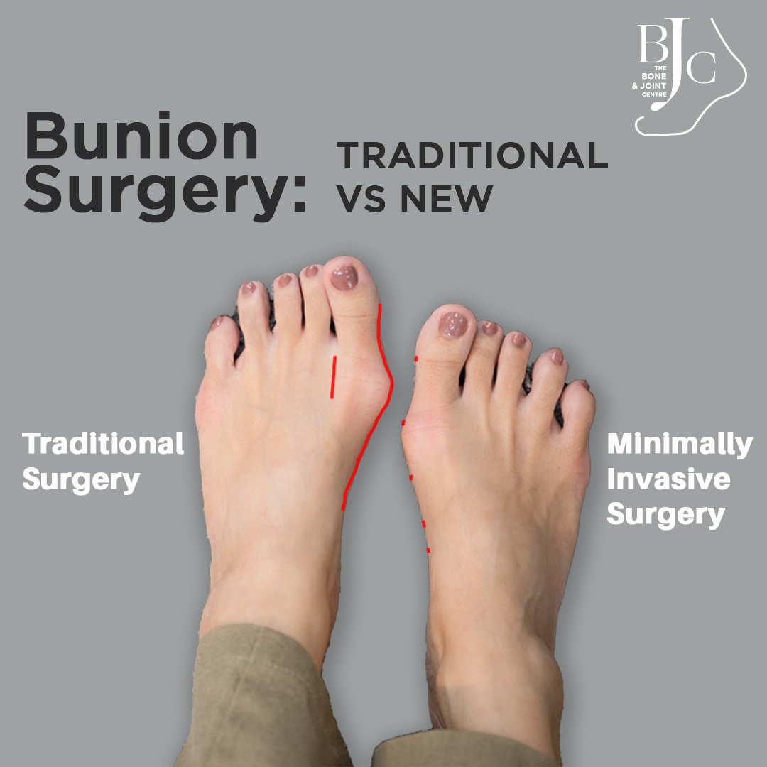 Bunion Surgery Treatment in Singapore - Traditional and New